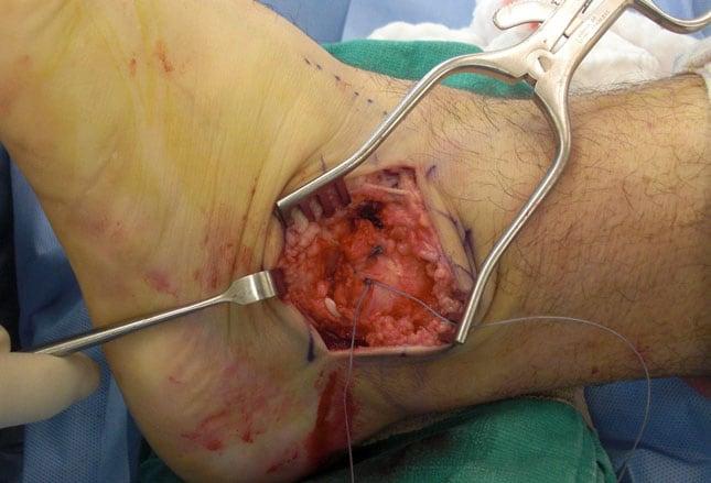 Ungl cklich umgeknickt die 3 h ufigsten verletzungen am for Douleur interieur du pied